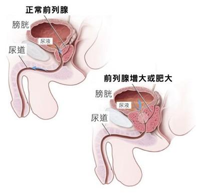 前列腺肥大我们要怎么治疗较好